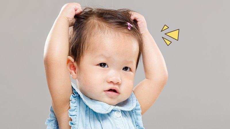 4 Cara Alami Mengatasi Kutu Rambut Bayi