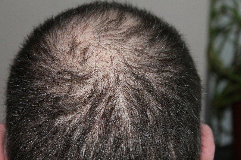 Terapi lintah di kepala dapat mengatasi beberapa masalah pada kulit kepala