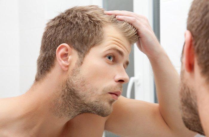 Rambut rontok pria