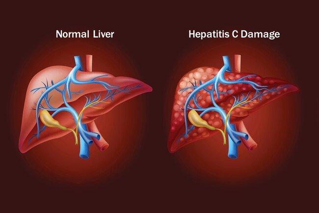 Hepatitis C Mudah Dikenali
