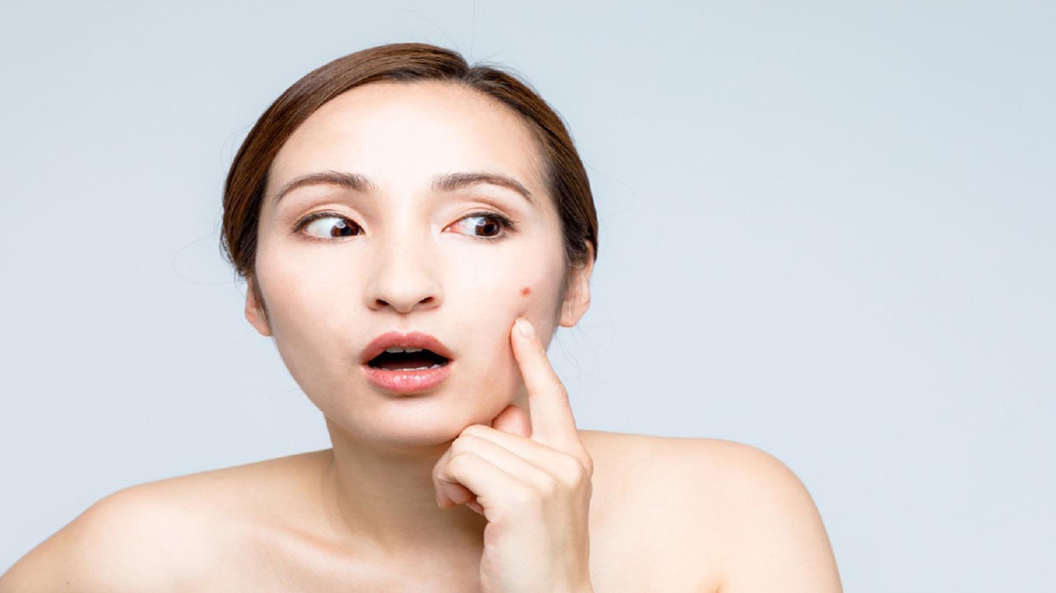 Apakah Jerawat Karena Salah Memilih Kosmetik Bisa Hilang