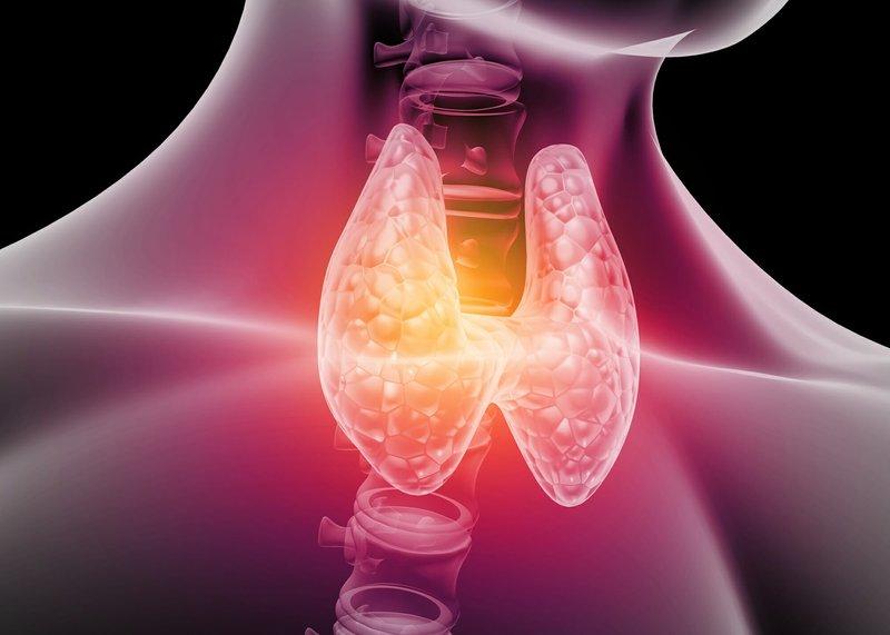 gejala dari hipertiroid