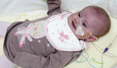 Cukup Berbahaya, Ini Cara Menangani Gray Baby Syndrome