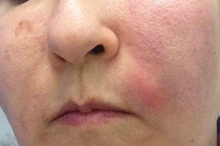 infeksi-wajah.jpg