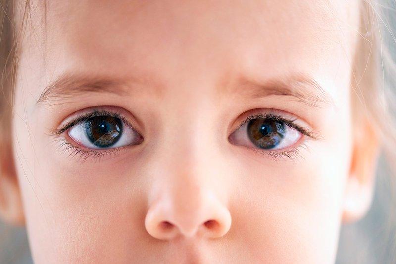 infeksi mata anak-1.jpg
