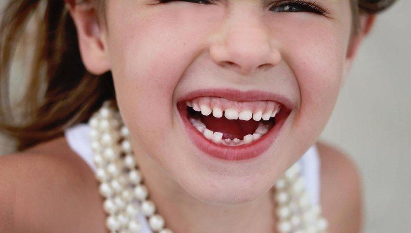 ini yang bisa moms lakukan saat gigi susu anak mulai tanggal 2
