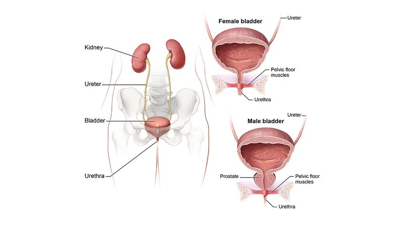 interstitial-cystitis-painful-bladder-syndrome-1200x675.jpg