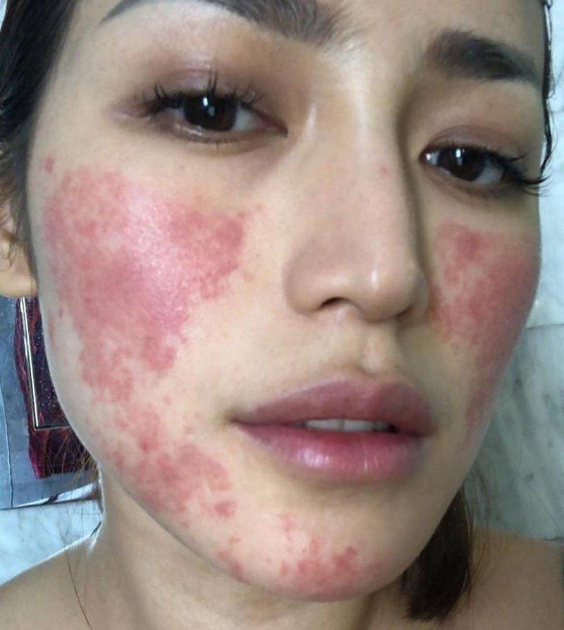 jessica iskandar, alergi enestesi