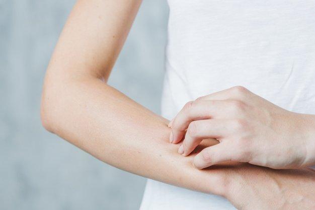 jenis alergi kulit pada anak 2.jpg