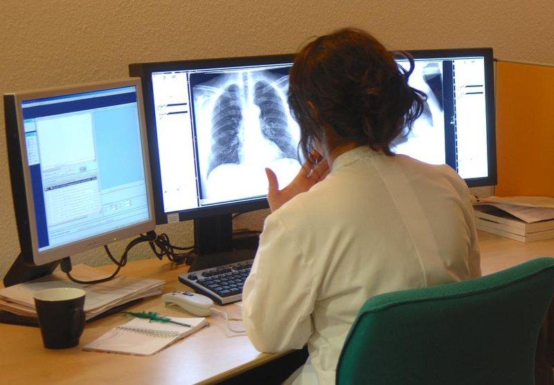 kanker paru-2.jpg