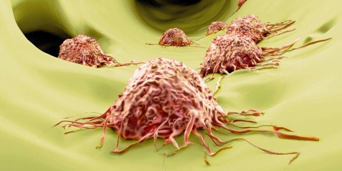 Kista Ovarium merupakan Kanker