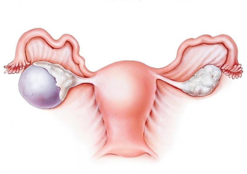 kista ovarium - gejala (medicalnewstoday).jpg