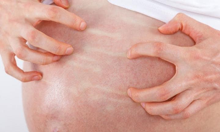 kolestasis pada ibu hamil.jpg