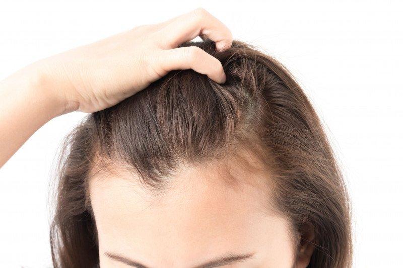 psoriasis kepala