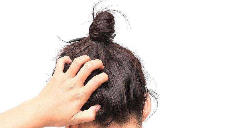 kulit kepala gatal.jpg