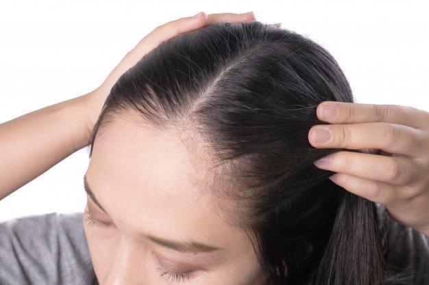 kulit kepala sensitif-1.jpg