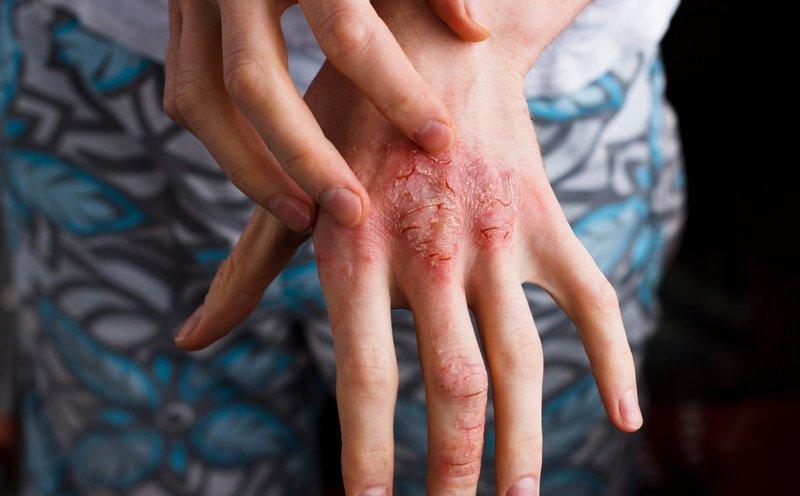 tanda dermatitis atopik