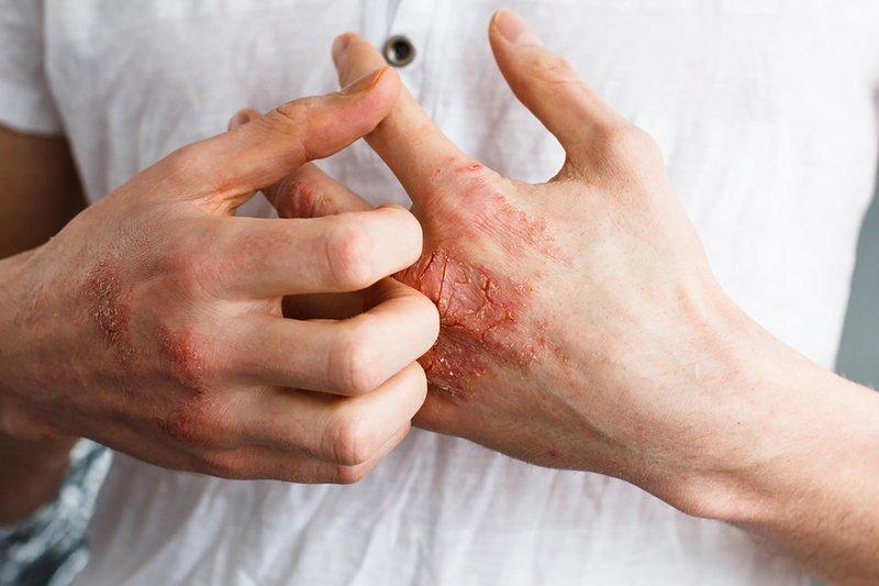 menjaga kesehatan kulit saat COVID-19