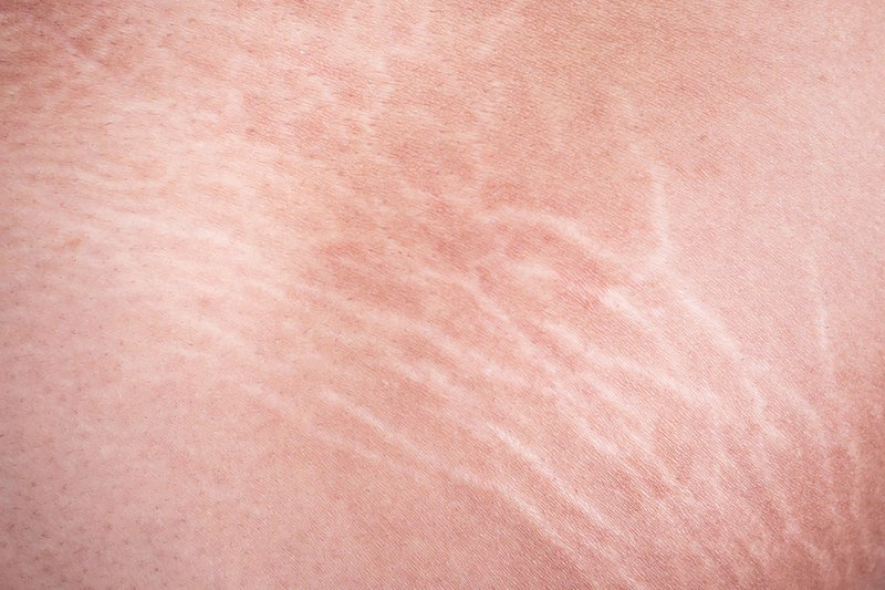 manfaat kunyit untuk kecantikan - 5 mengurangi munculnya stretch mark.jpg