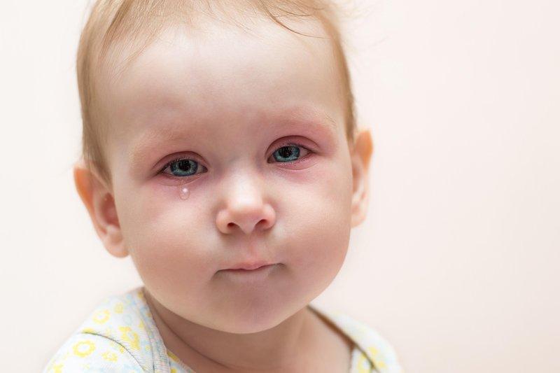 mata bayi merah