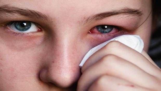 penyebab sakit mata.jpg