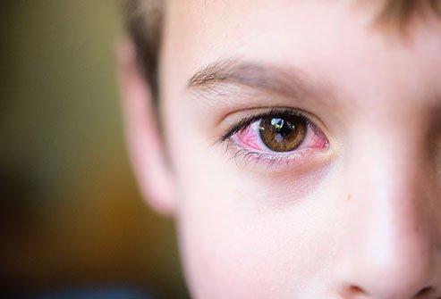 penyebab konjungtivitis pada anak