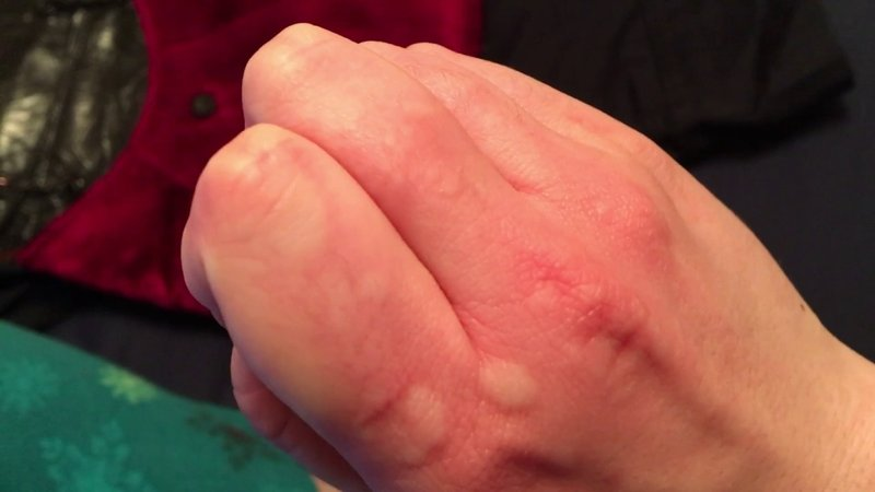 kesehata, alergi dingin