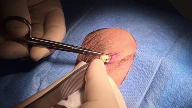 Operasi kista ateroma