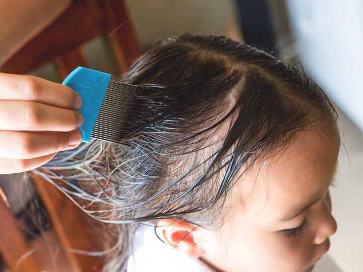 menghilangkan kutu rambut bayi (2).jpg