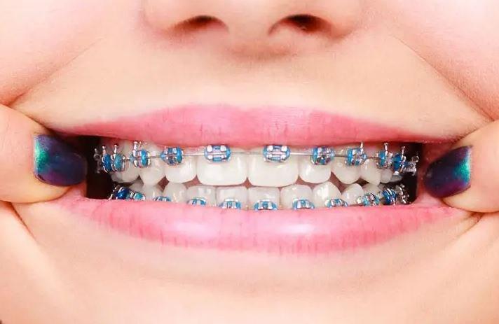jenis behel gigi