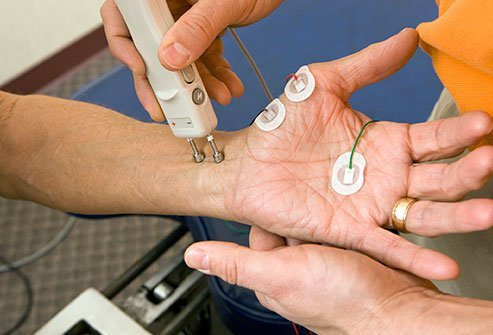 neuropathy-ncv-test - emedicinehealth.com.jpg