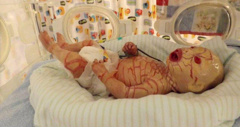 newborn-with-harlequin-ichthyosis.jpg