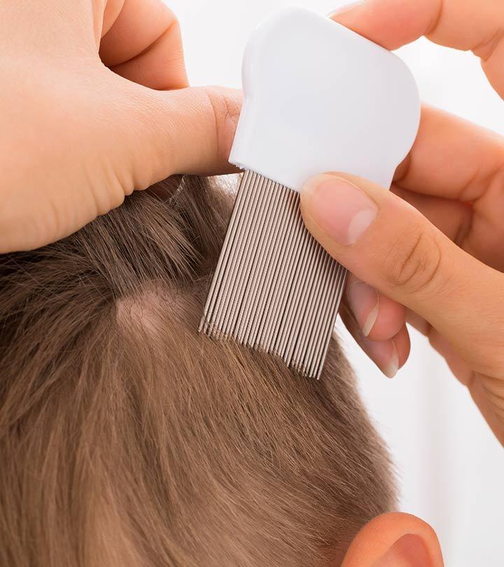 mengatasi kutu rambut