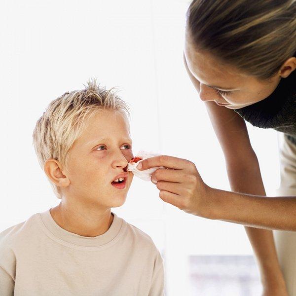 mimisan pada anak