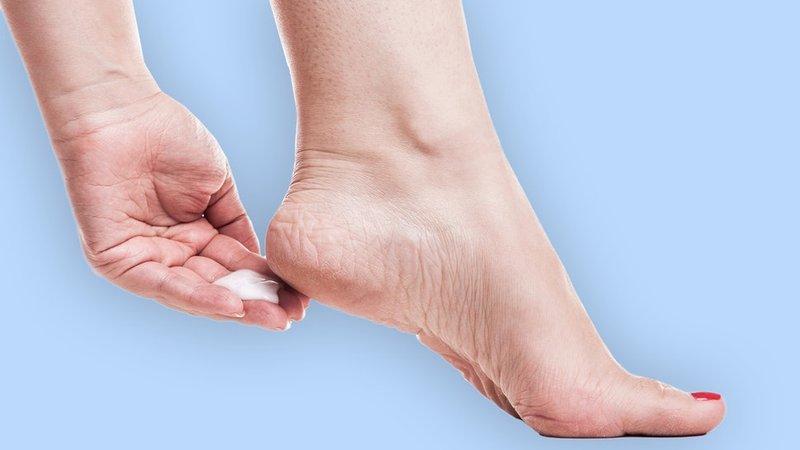 obat kaki pecah-pecah dan kering - krim kaki.jpg