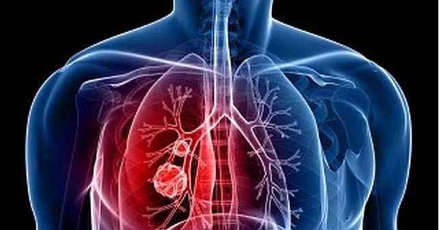 TBC hanya terjadi di paru-paru