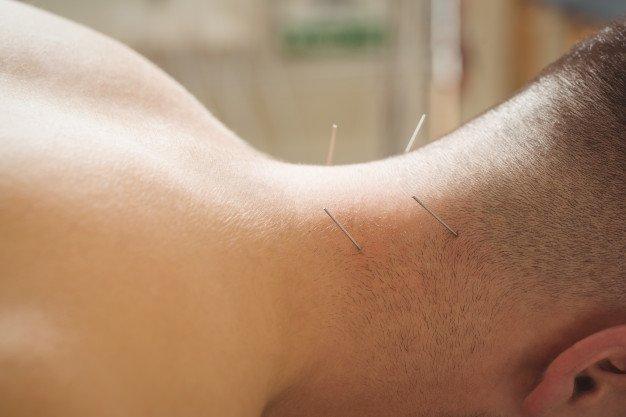 Terapi alternatif untuk sakit punggung