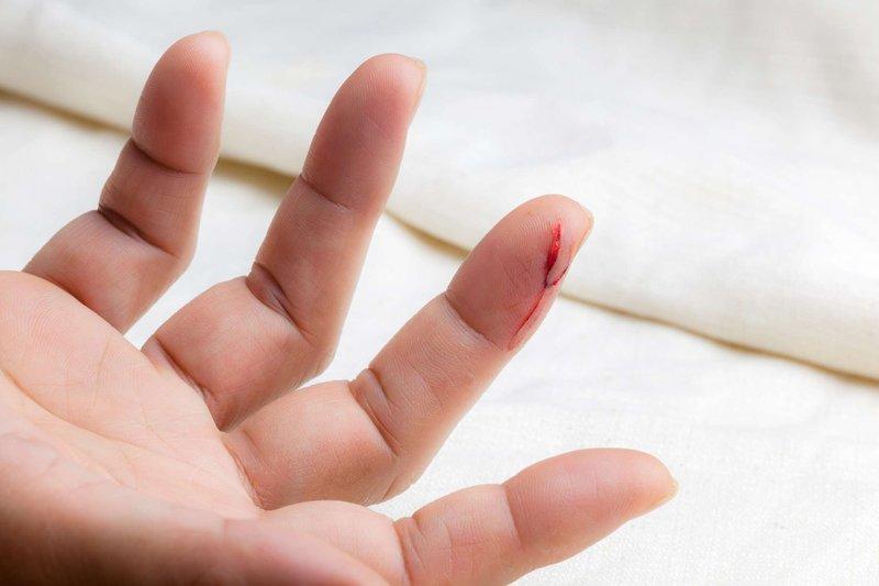 pembekuan darah-1.jpg