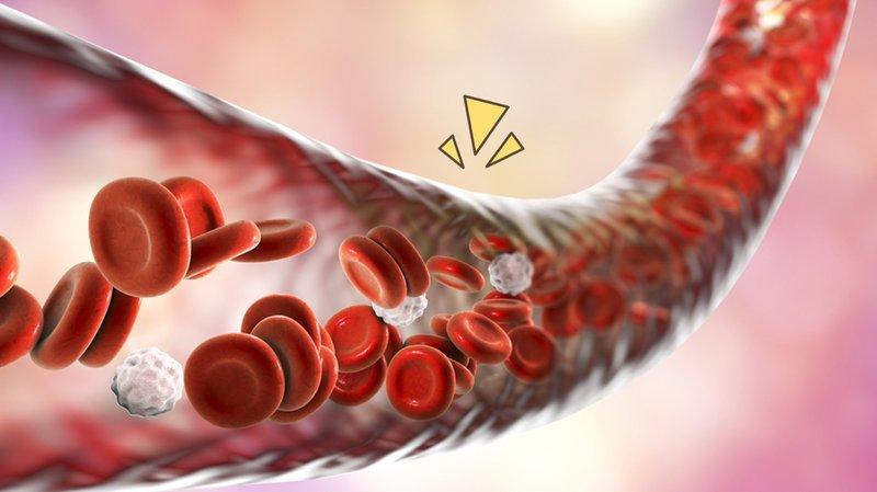 pembuluh-darah-pecah.jpg