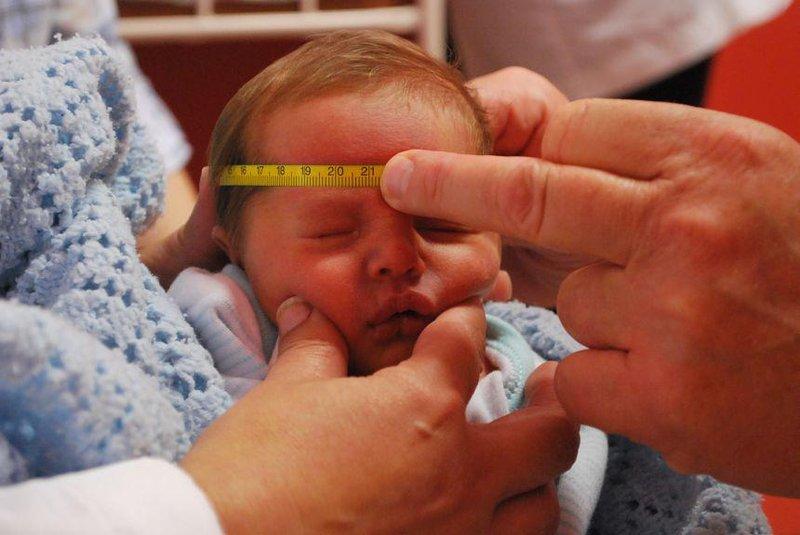 pentingnya mengukur lingkar kepala bayi sesuai usianya 3