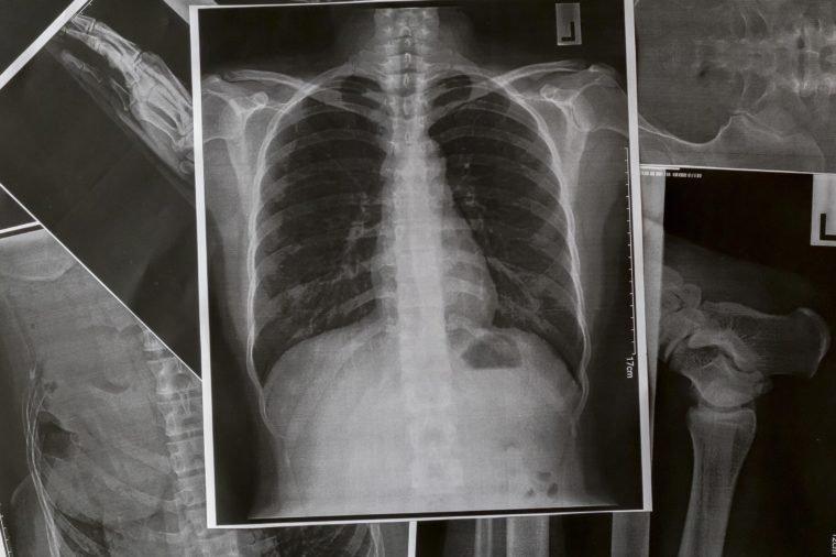penyakit yang menyebabkan nyeri dada sebelah kiri - 5 Costochondritis.jpg