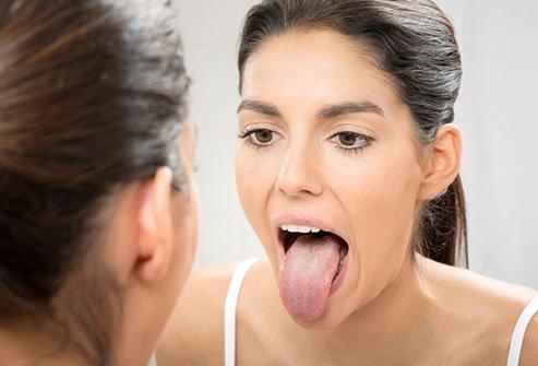 Tanda Dehidrasi-Mulut dan Kulit Kering