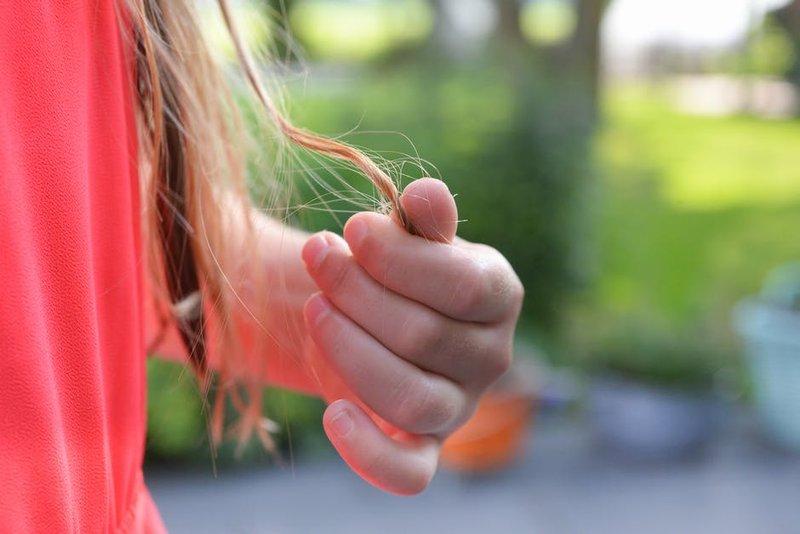 penyebab rambut rontok pada anak 5.jpeg