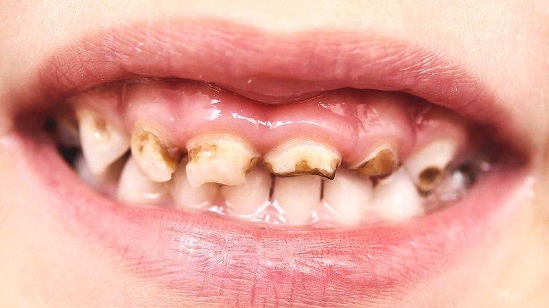 penyebab sakit gigi pada balita (3).jpg