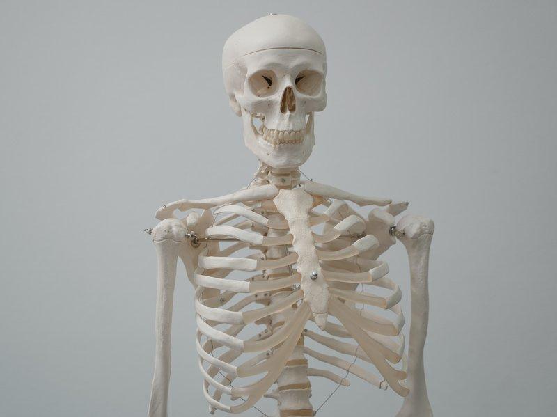 kelainan tulang tengkorak