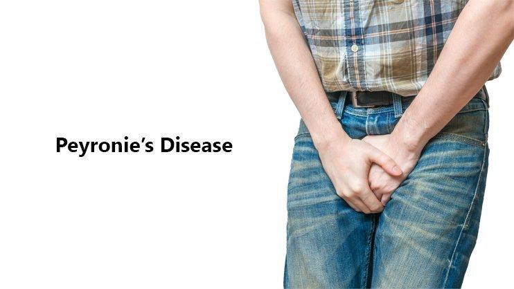 peyronies-disease.jpg