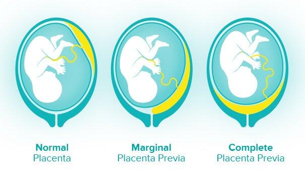 placenta-previa.jpg