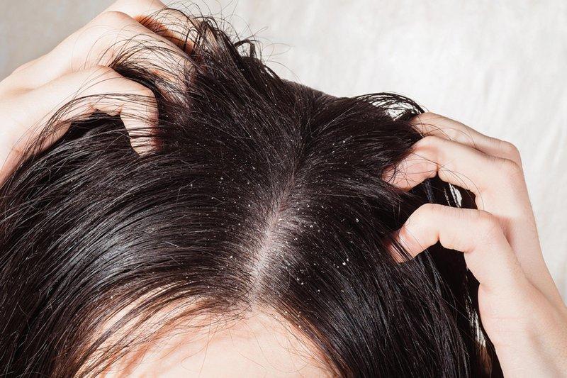 plus minus dry shampoo - kotoran dan bakteri.jpg