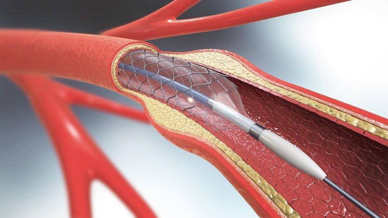 prosedur pemasangan ring jantung.jpg