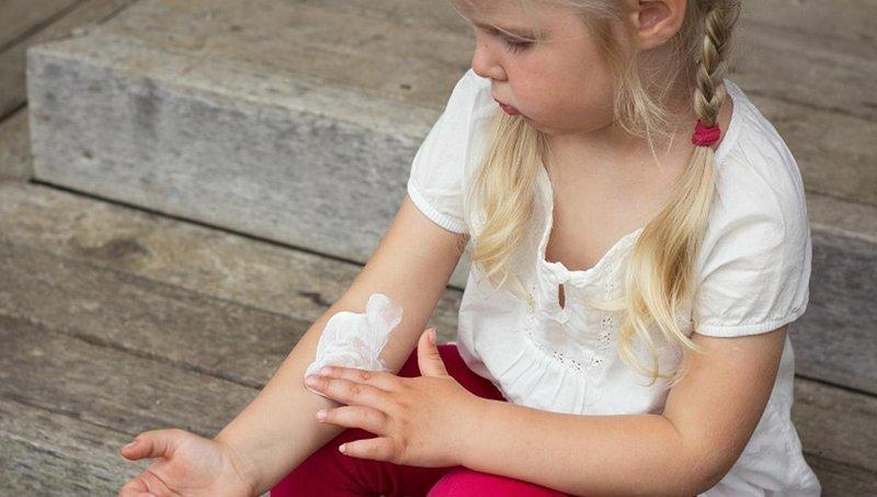 psoriasis pada anak gejala, penyebab, dan pengobatannya 1